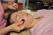 TCA红酸焕肤(韩国皮肤管理专用产品)