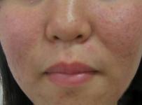 真真去红血丝效果怎么样?蒸脸机红血丝可以用吗?