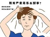 改善头皮出油问题用乌臣臻萃滋发液如何?