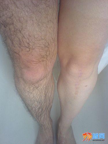 hairy-legs.jpg