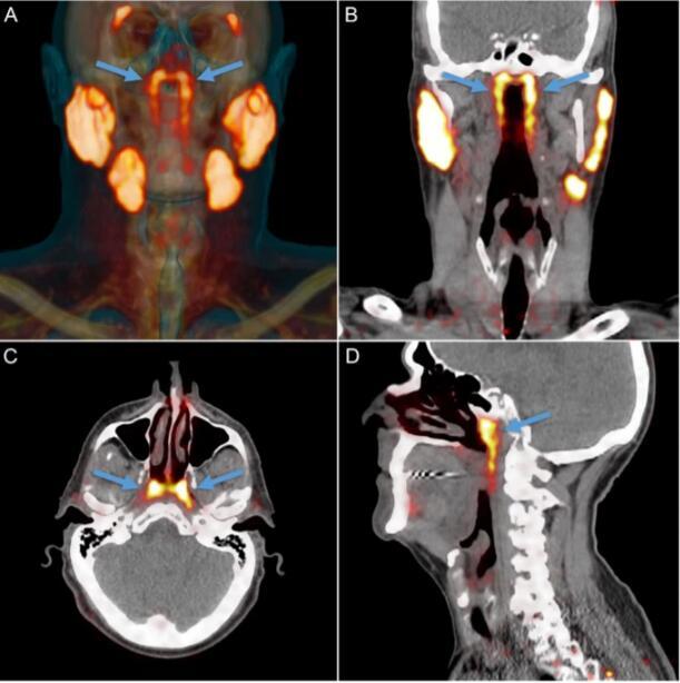 我还在进化?科学家发现人体新器官可抗癌症副作用
