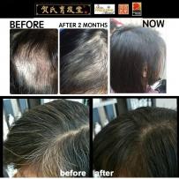 改善脱发、白发、头皮屑的一站式服务!