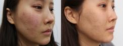 韩国陈整形外科医院-自体真皮再生术 皱纹&疤痕,痘坑