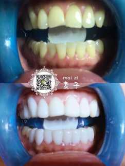 6D瓷雕美牙