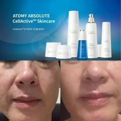 开启逆龄时代的优质护肤品Absolute CellActive逆龄EGF 6件套